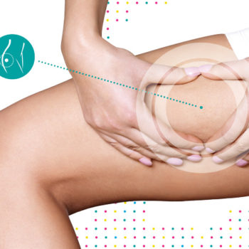 Mesoterapia e Cellulite